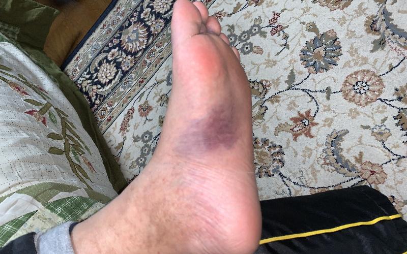 足裏の内出血